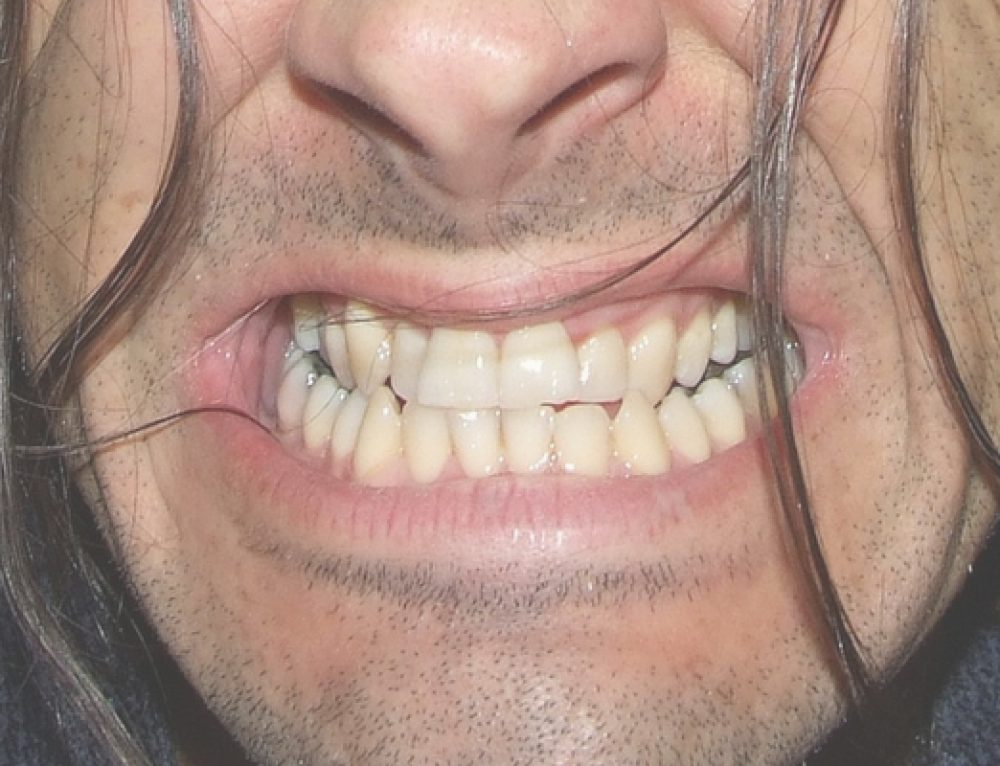 Hampaiden narskuttelu